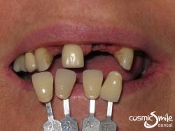 Dental Implant – Before – Without dentures