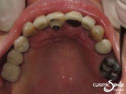 Dental Implant – Top view with implants in place