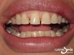 Porcelain veneers – Before – Yellowish with spaces between front teeth