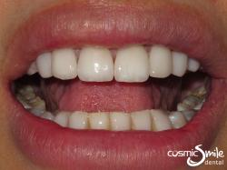 Porcelain veneers – After – White teeth with all spaces closed