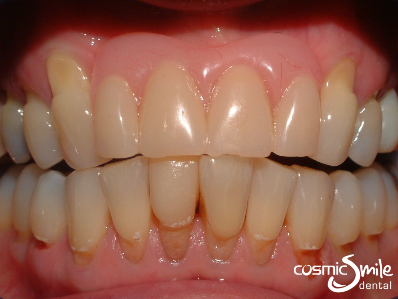 Composite toothbrush abrasion lesions on lower teeth