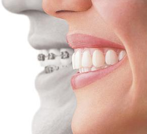 Invisalign Profile Faces