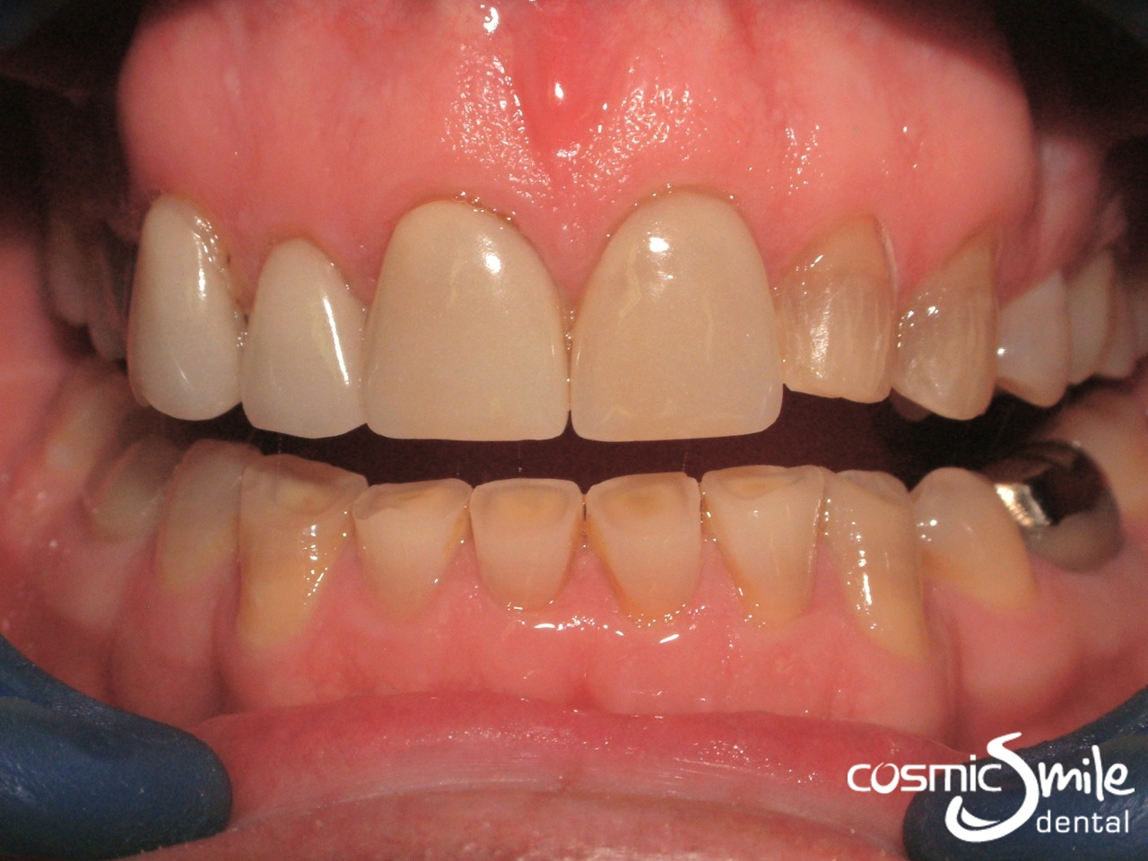 Tooth whitening for capped teeth celebrity