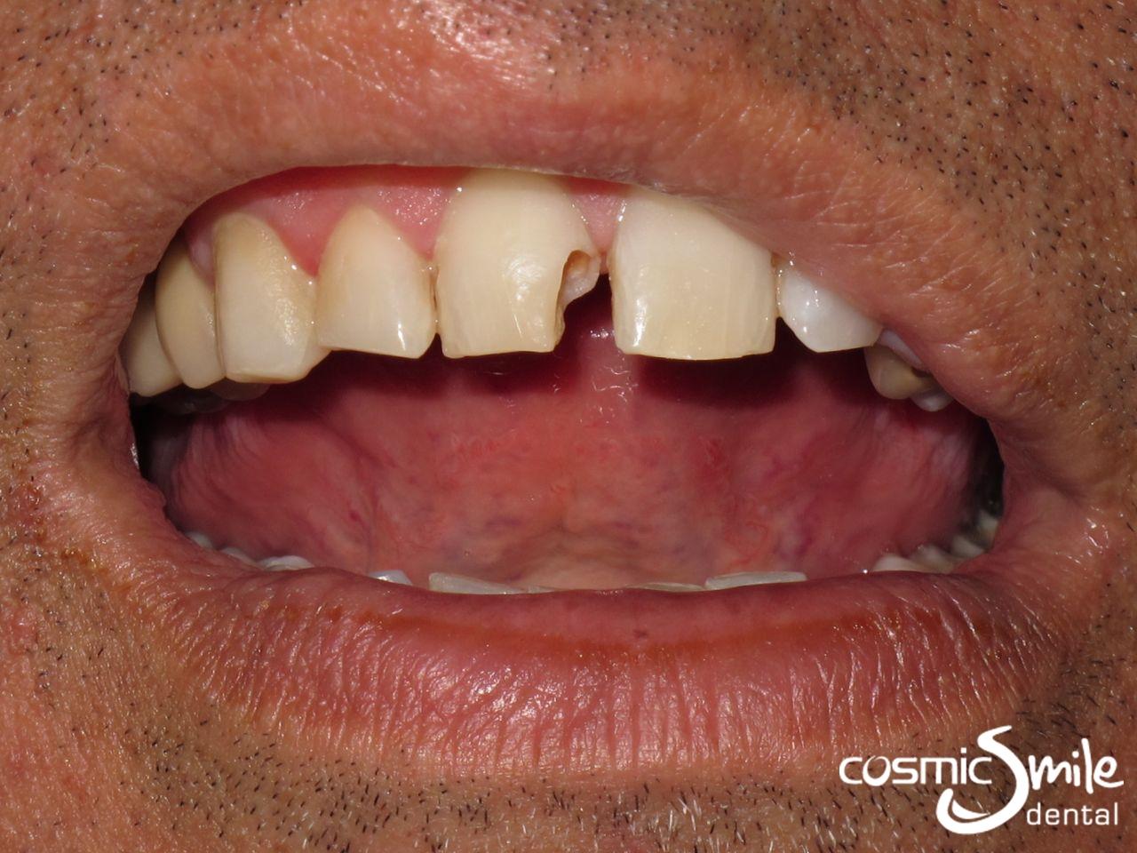 dental filling front teeth - photo #29