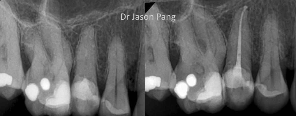 dr-j-pang-rct-25