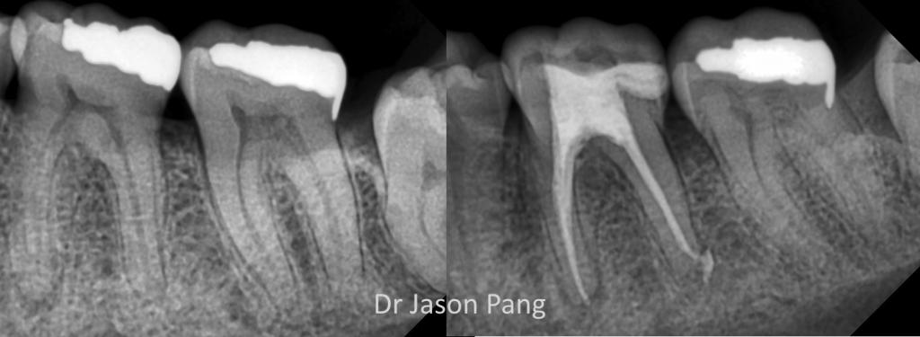 dr-j-pang-rct-36