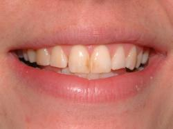 Enamel microabasion – Before – Upper front teeth with enamel staining