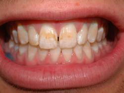 Enamel microabasion – Before – Front teeth stained