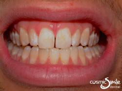 Enamel microabasion – Before – Stains removed