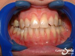 Composite – Teeth restored with composite resin