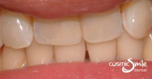 Composite – Cosmetic white resin filling