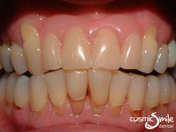 Composite – Toothbrush abrasion lesions on lower teeth