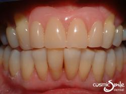 Composite – Lower teeth restored with white resin filling