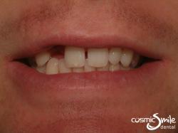 Composite – Spacing between front teeth