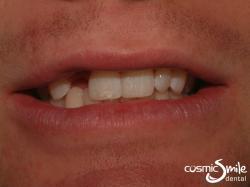 Composite – Diastema closure with composite resin