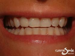 Composite – Tooth restored with white resin filling