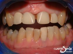 Dental crowns – Denture front teeth