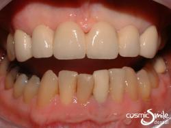 Dental Crowns – Ceramic bridge across front six teeth