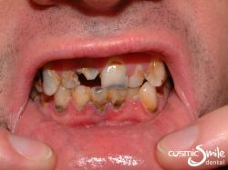 Dentures 1 – Upper teeth to be extracted