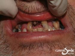 Dentures 3 – Upper teeth to be extracted