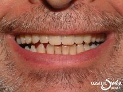 Dentures 4 – New full upper denture in place