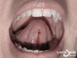 Laser Frenectomy – After laser frenectomy
