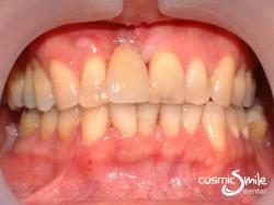 Dental Implant- Implant crown on upper right central incisor