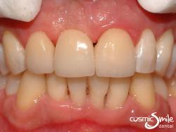 Dental Implant – Right central incisor restored with implant