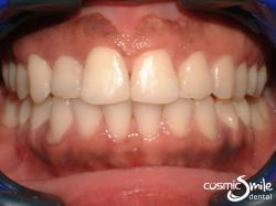 Invisalign – Crossbite corrected with Invisalign