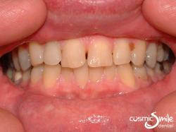 Invisalign – Crowded anterior teeth