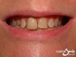 Lumineers – Mismatched crown, spacing between teeth and baby teeth