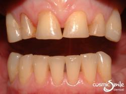 Lumineers – Worn anterior teeth