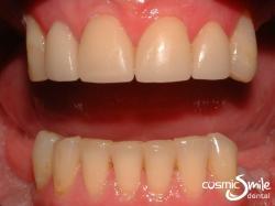 Lumineers – Lumineers on front teeth