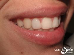 Lumineers – LUMINEER on right lateral incisor
