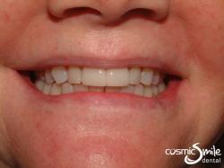 Lumineers – LUMINEERS on central incisors