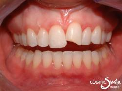 Lumineers – Chipped front tooth