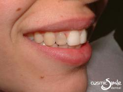 Lumineers – Dark right lateral incisor