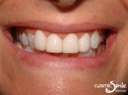 Lumineers – Whiter, aligned front teeth with LUMINEERS