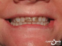 Lumineers – Worn, stained front teeth
