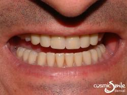 Dental Implant – Lower denture retained by mini implants