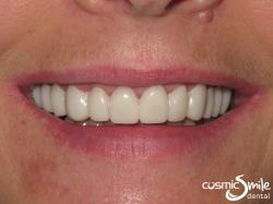 Snap on Smile – Snap-on Smile in place