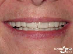 Snap on Smile – Longer, whiter teeth in place