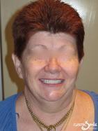 Snap on Smile – Longer, whiter teeth in place – Full face