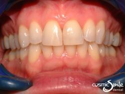 Lumineers – Triangular front teeth