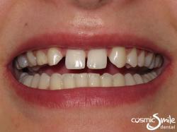 Snap on Smile – Deciduous teeth and diastema