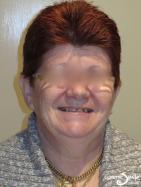 Snap on Smile – Short, dark teeth with gaps – Full face