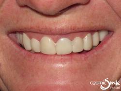 Snap on Smile – Whiter happy smile