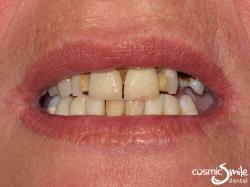 Snap on Smile – Teeth requiring restorations