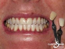 ZOOM teeth whitening – After – Shade BL3