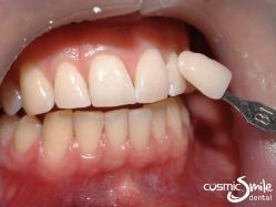 ZOOM teeth whitening – After – Shade B1